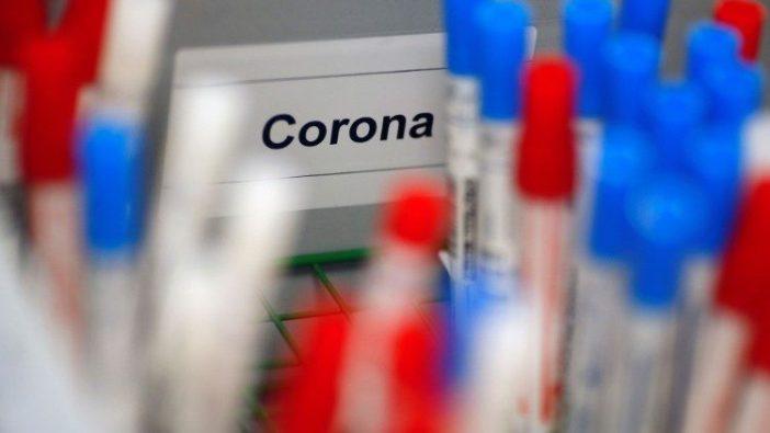 Botol plastik berisi tes untuk coronavirus di laboratorium medis
